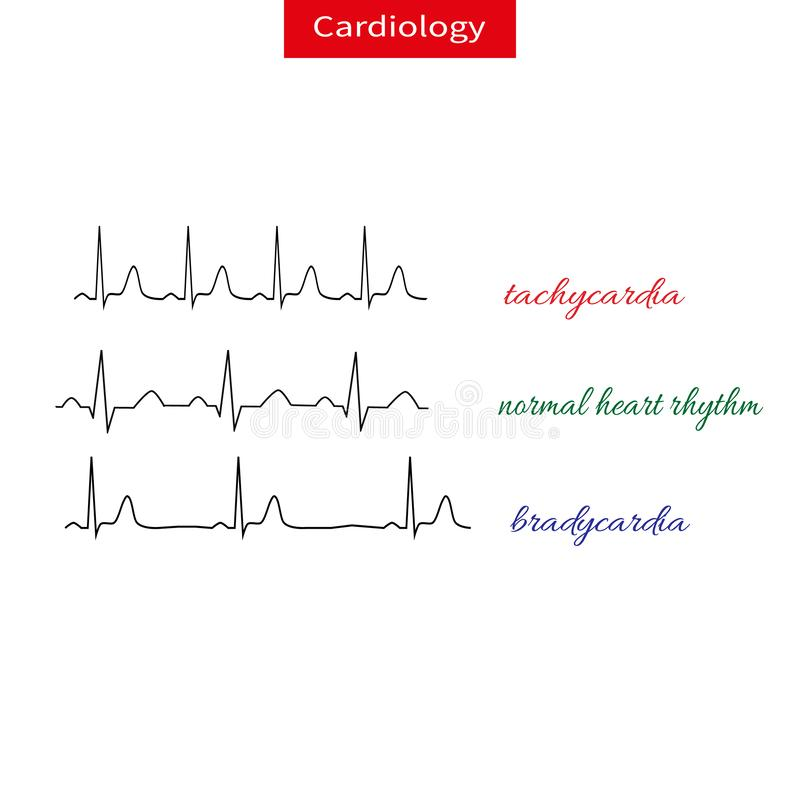 Tachycardia and bradicardia. Difference of heart pulsating, Fast and slow rhythm of heart. Normal heart rhythm. vector illustration