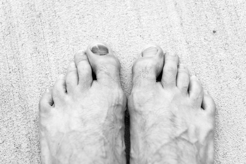 Take care of your feet. Pedicure and podiatry. Treatment of bruise and fracture. Medicine concept. Trauma foot toes stock images