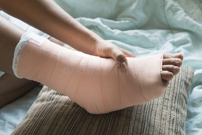Tala macia do pé para o tratamento dos ferimentos foto de stock royalty free