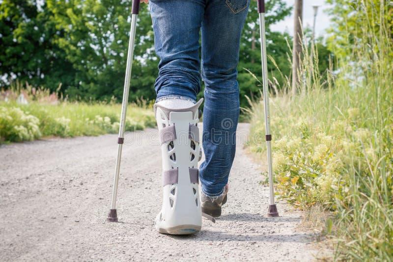Tala na área do pé e para abaixar a área do pé após a ruptura do tendão de Achilles fotos de stock