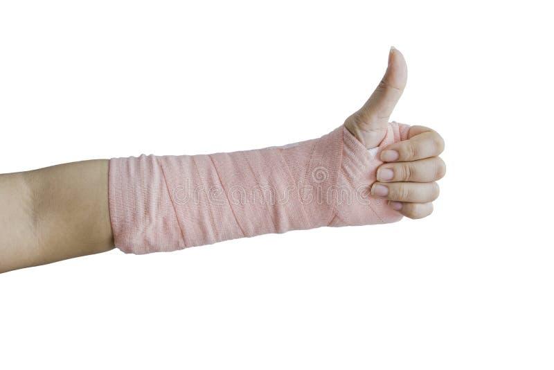 Tala, osso quebrado, isolado quebrado da mão no fundo branco fotografia de stock royalty free