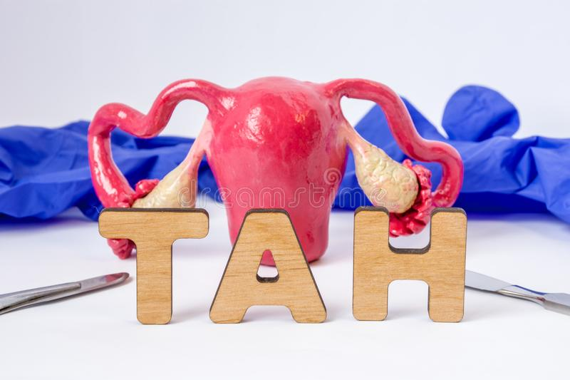 TAN全面胃肠子宫切除的外科医疗首字母缩略词或简称-手术去除妇女子宫子宫 词TAN nea 库存照片