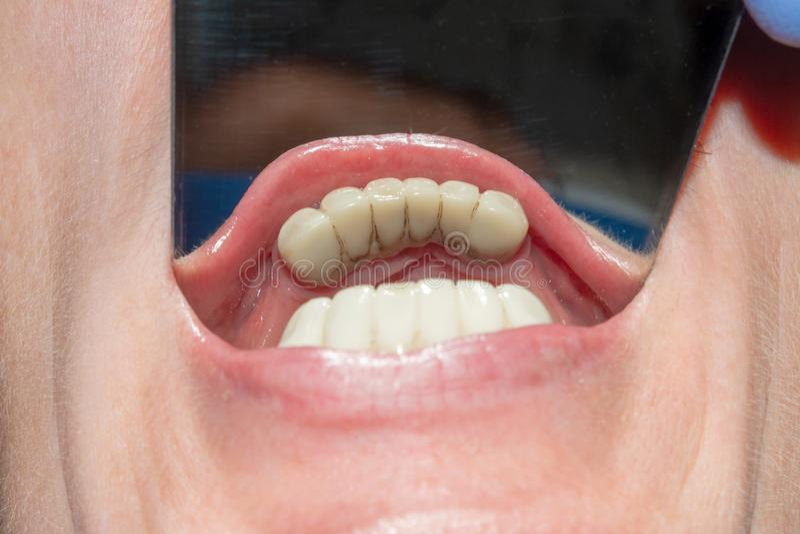 Tand- återställande av ruttet rotar av tänderna med keramiska kronor gjuten stolpetandläkekonst arkivbilder