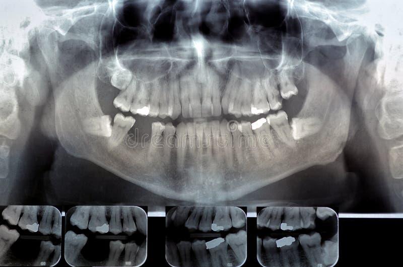 Tand- bildläsning för tänder för röntgenfotograferingDigital röntgenstråle av den vuxna mannen royaltyfri bild