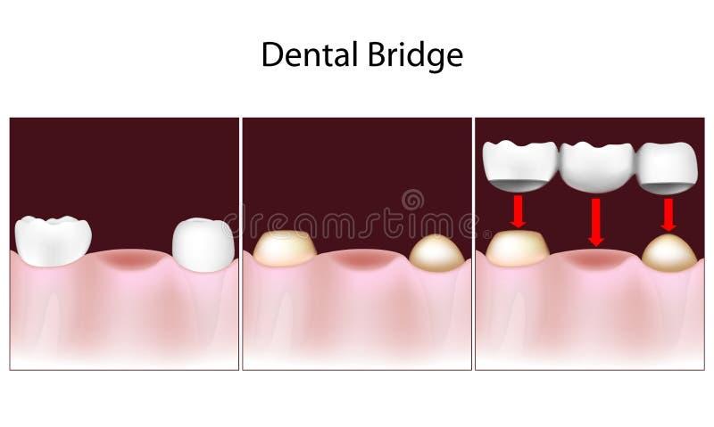 Tand brugprocedure vector illustratie