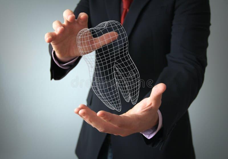 Tand- design för implantat stock illustrationer