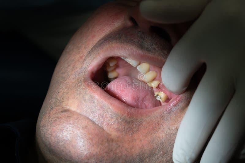 tand- det att inplantera royaltyfri bild