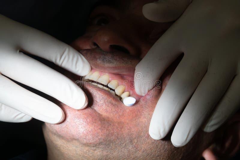 tand- det att inplantera royaltyfri foto