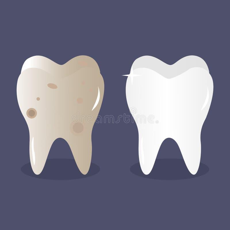 Tand före och efter som bleker och gör ren vektor illustrationer
