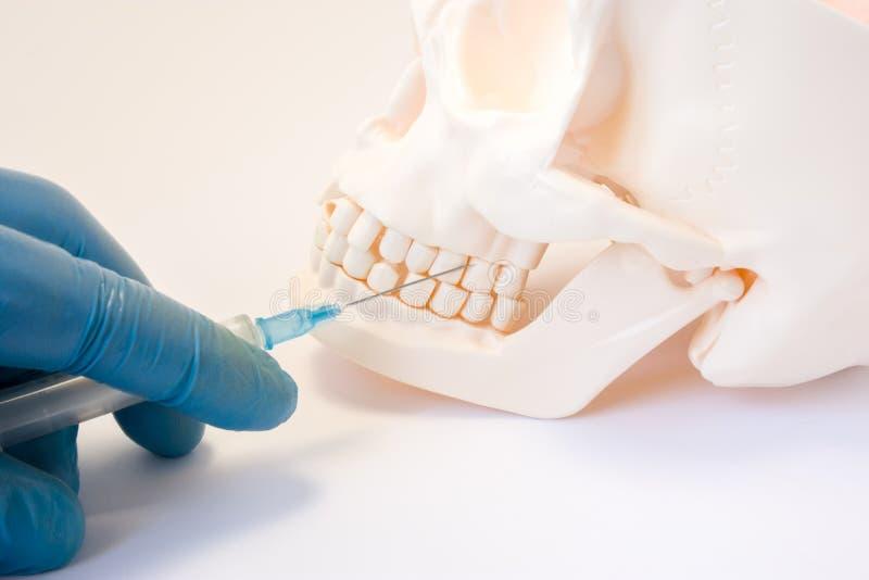 Tand- foto för begrepp för anestesi- eller punkteringcystatand Injektionsspruta för doktorstandläkareinnehav, visarstötar in i öv arkivbilder