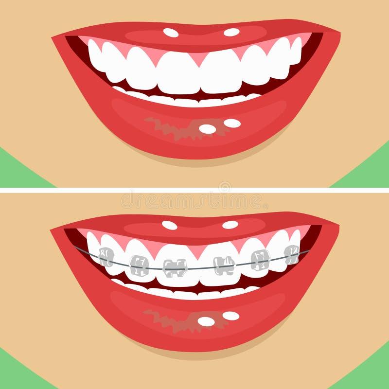 Tand- hänglsen, före och efter stock illustrationer