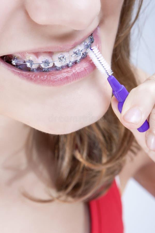 Tand- hygienbegrepp Closeup som skjutas av Caucasian tonårs- flicka arkivfoto