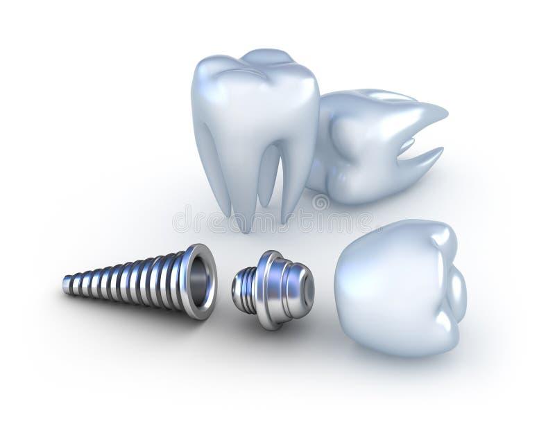 Tand implant en tanden vector illustratie