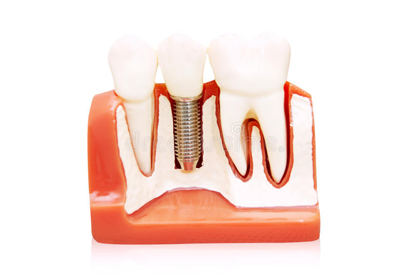 Tand- implantat royaltyfria bilder