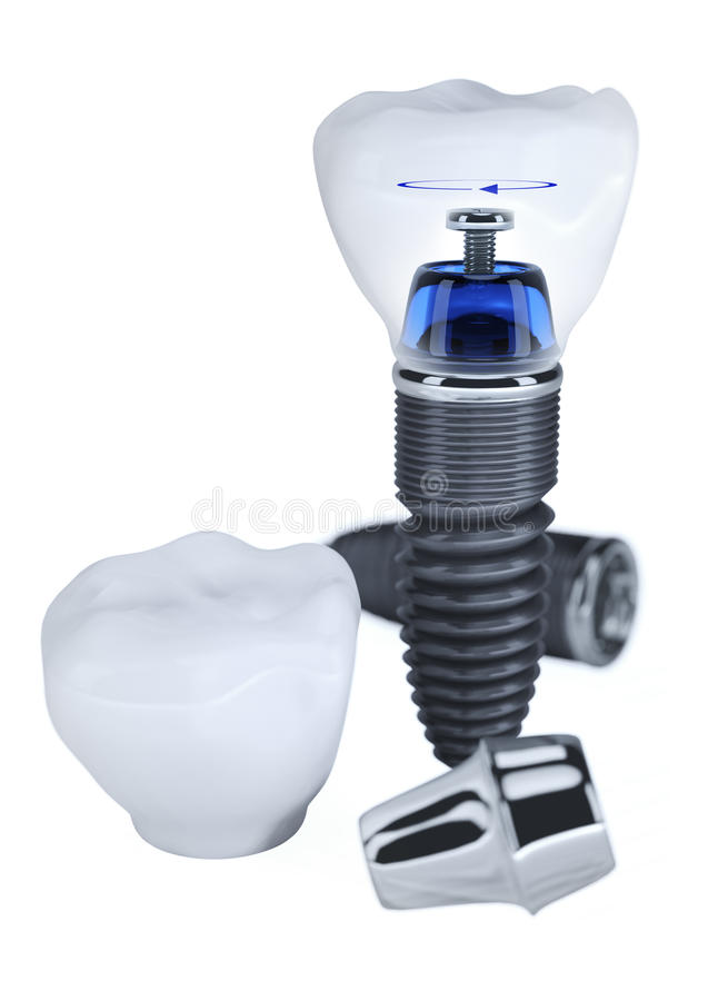 tand- implantat för konstruktion arkivfoton