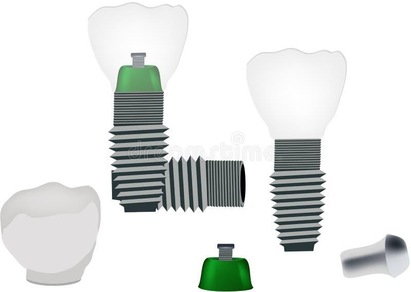 Tand- implantat f?r tand- ?vning f?r protes vektor illustrationer