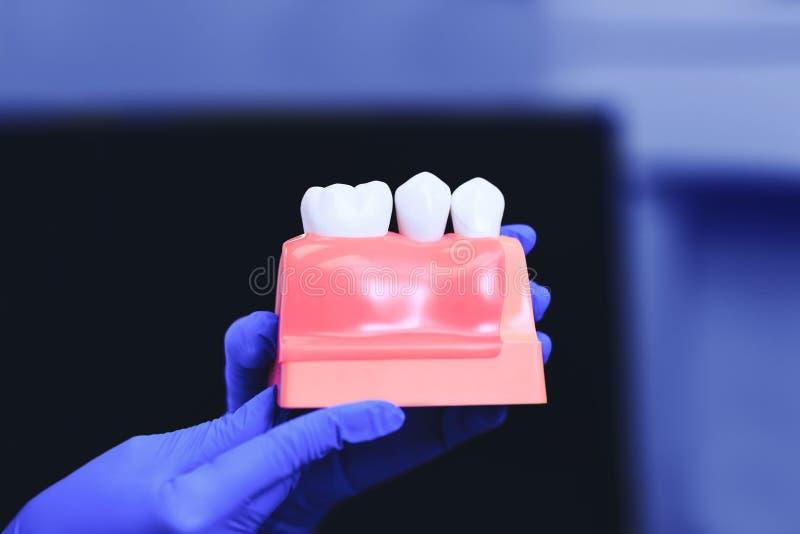 Tand- implantat och tand i händerna av den verkliga doktorn arkivbild