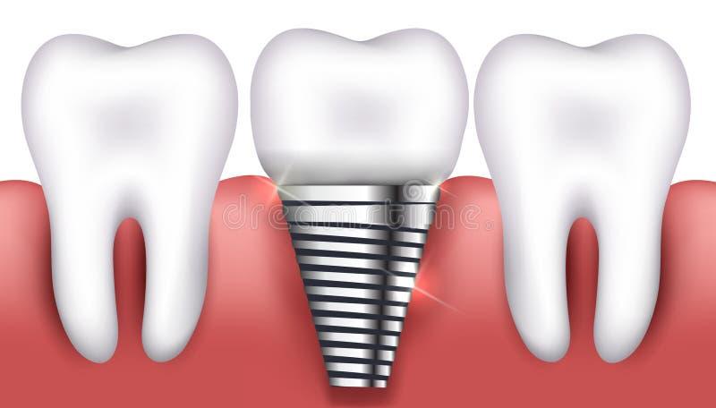 Tand- implantat och normala tänder royaltyfri illustrationer