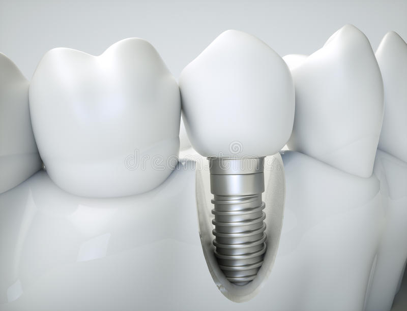 Tand- implantat - tolkning 3d royaltyfria foton