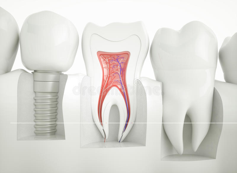 Tand- implantat - tolkning 3d royaltyfria bilder