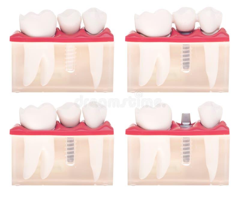 tand- implantatmodell royaltyfri foto