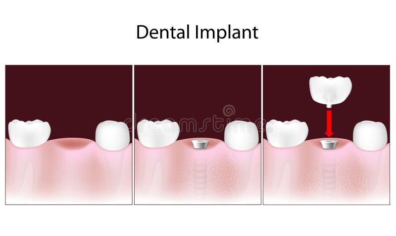 Tand- implantattillvägagångssätt stock illustrationer