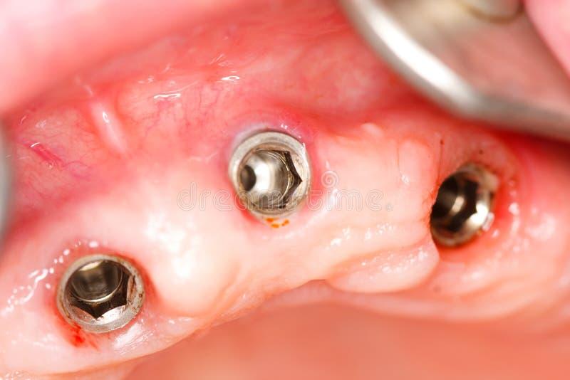 Tand implants royalty-vrije stock afbeelding