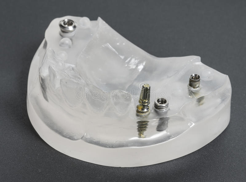 Tand implants stock foto's