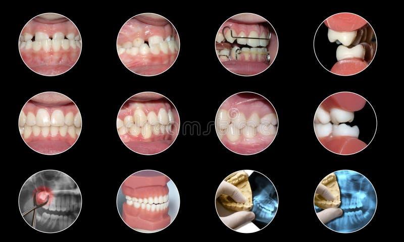Tand- infographic ortodontisamling royaltyfri illustrationer