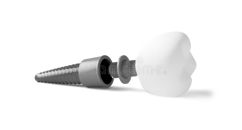 tand- isolerad siktswhite för element implantat stock illustrationer