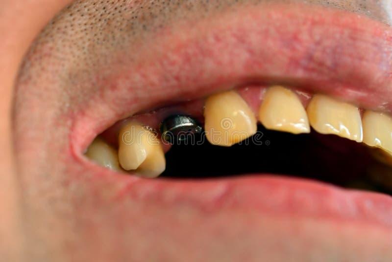 tand- isolerad siktswhite för element implantat royaltyfri bild