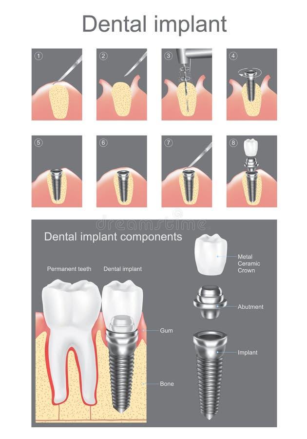 tand- isolerad siktswhite för element implantat vektor illustrationer