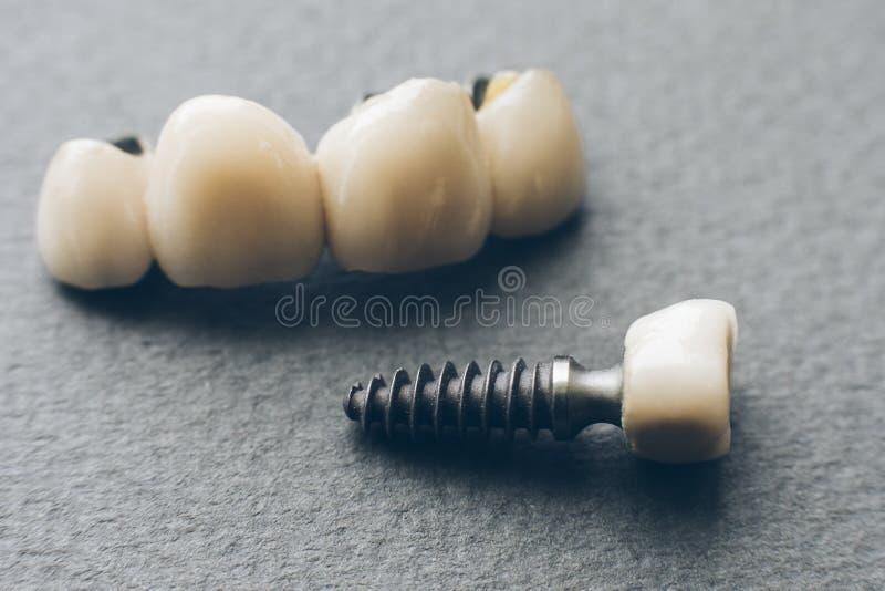 Tand- krona för Stomatologysjukvårdtandprotes royaltyfri foto