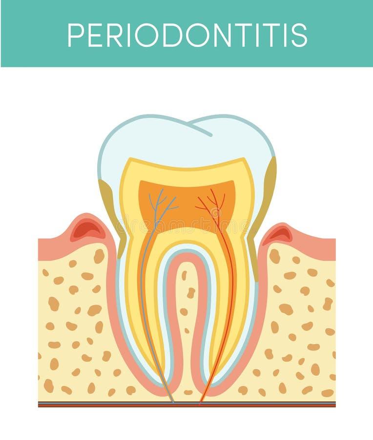 Tand med tandlossning vektor illustrationer