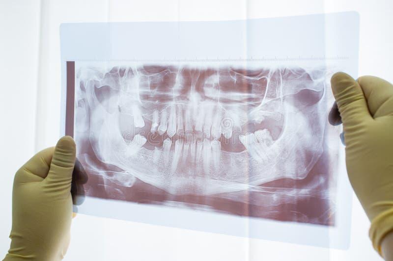 Tand- panorama- röntgenstråle av käkeslutet upp arkivbild