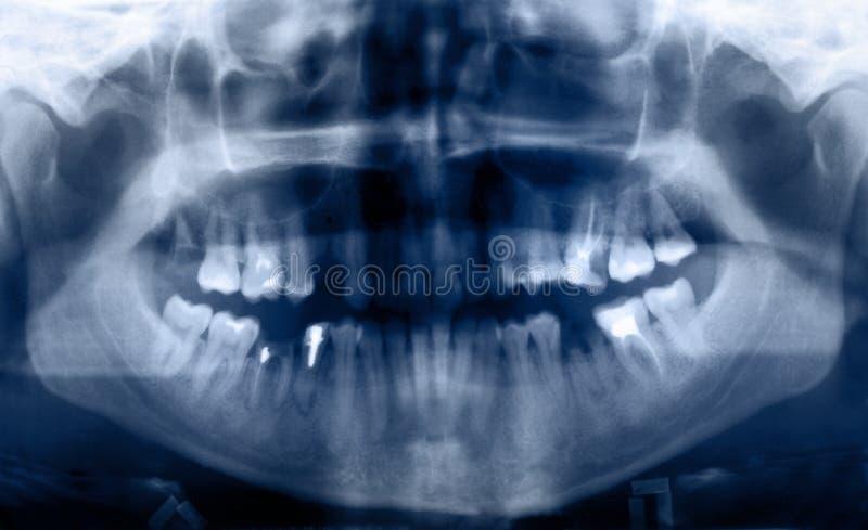 tand- panorama- stråle x royaltyfria bilder
