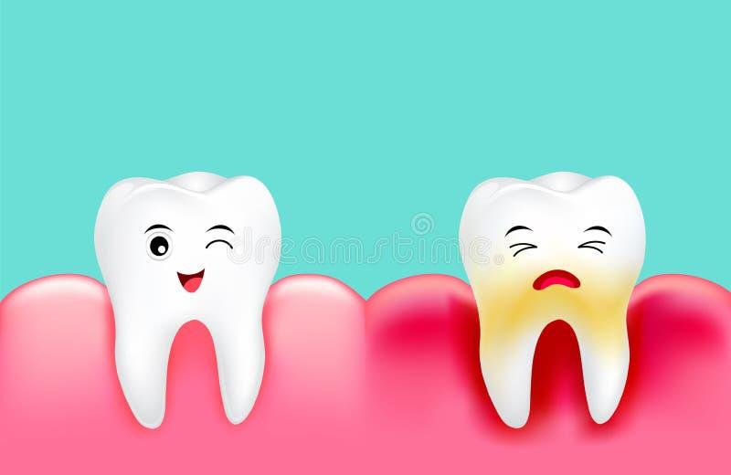 Tand- platta med inflammation och den sunda tanden stock illustrationer