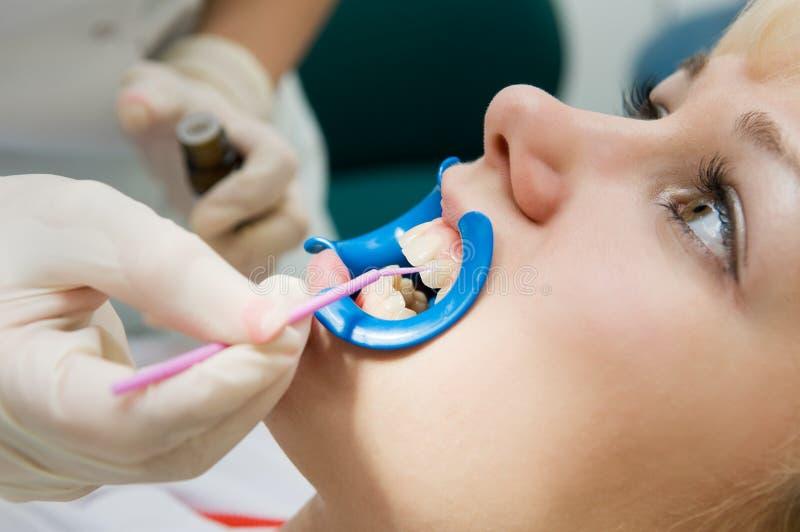 Tand procedure van tanden stock afbeeldingen