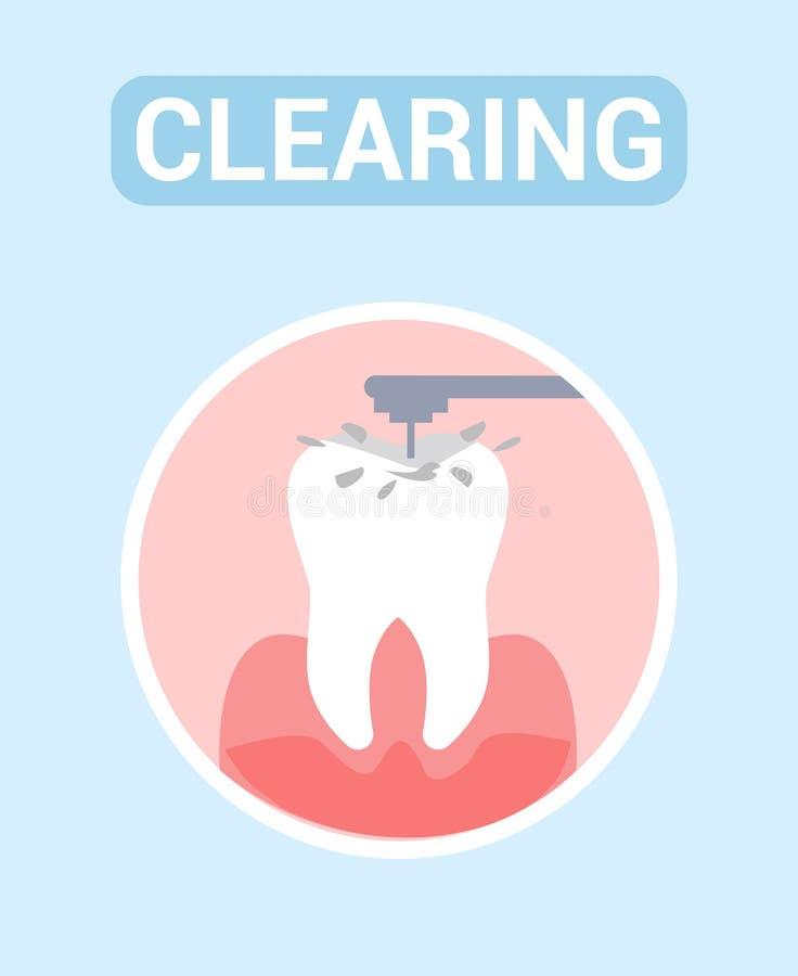 Tand- röjning, baner för rengöringsduk för tandborrandevektor royaltyfri illustrationer