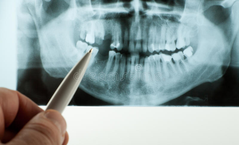 Tand- röntga royaltyfri fotografi