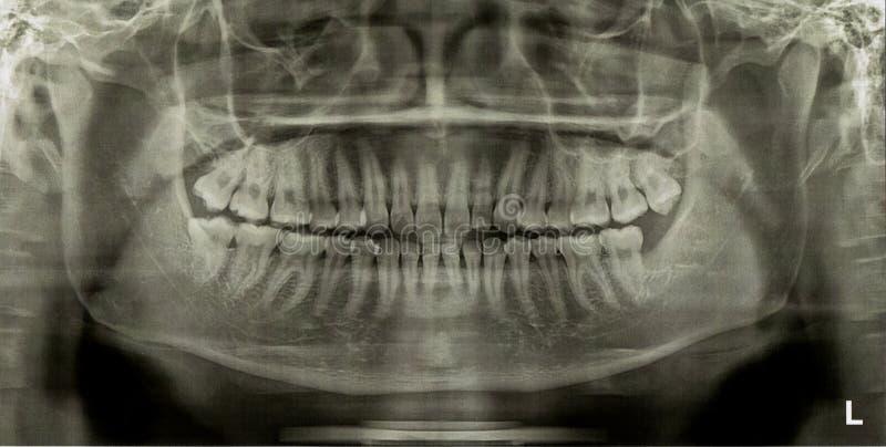 Tand- röntgenbildröntgenstråle arkivfoton