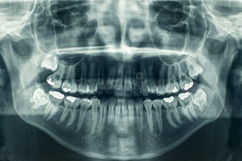 tand- röntgenstråle royaltyfria foton