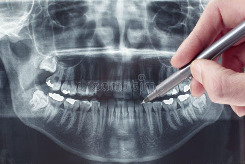 Tand- röntgenstråle royaltyfria bilder