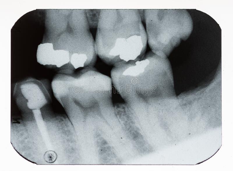Tand- röntgenstråle royaltyfri foto