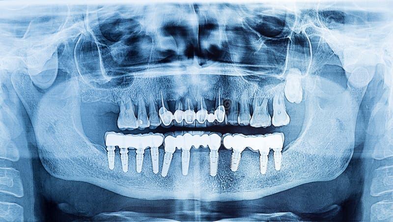 Tand- röntgenstråle som är panorama- av den övre och lägre käken Pro-tand- implantat royaltyfria bilder