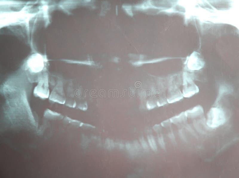 Tand- röntgenstrålefilm av den asiatiska kvinnan arkivfoto