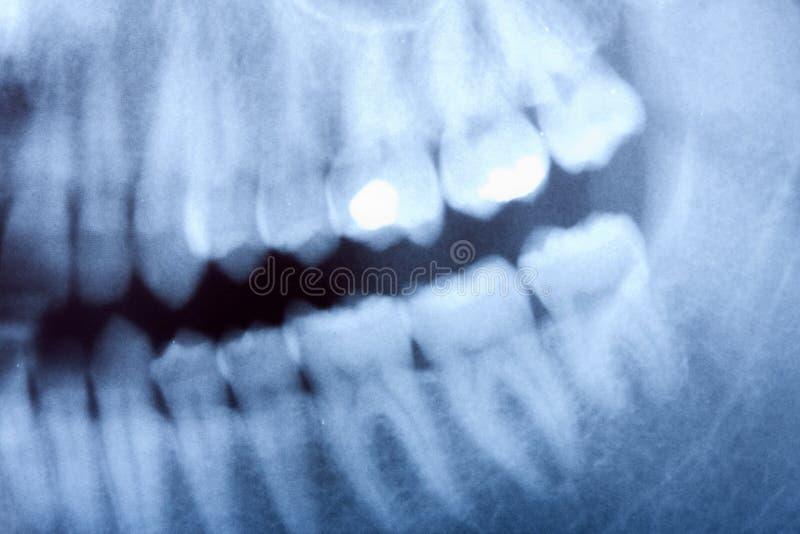 Tand röntgenstraal royalty-vrije stock afbeelding