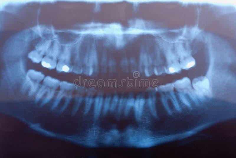 Tand röntgenstraal royalty-vrije stock foto's