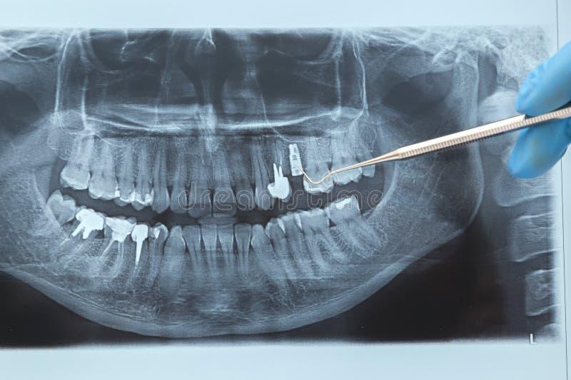 Tand Röntgenstraal radiografie royalty-vrije stock foto