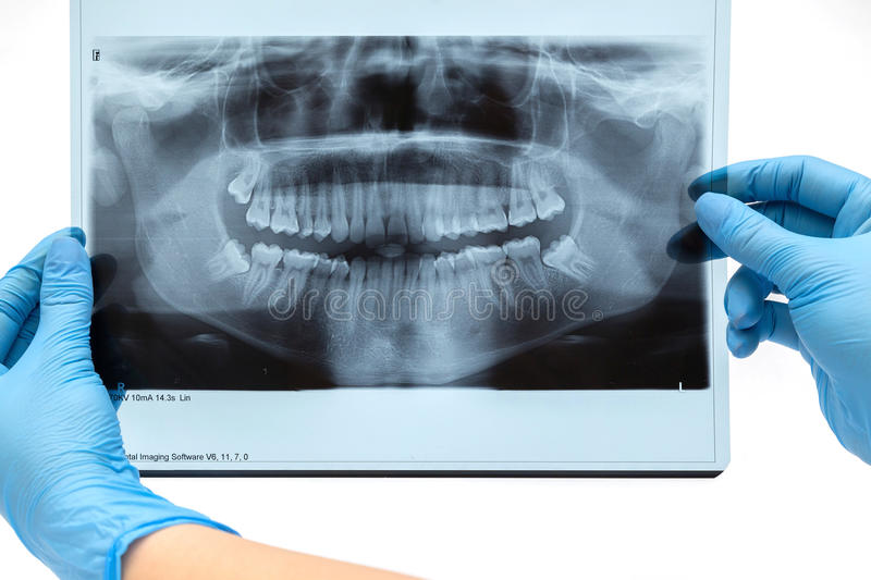 Tand Röntgenstraal radiografie royalty-vrije stock afbeeldingen